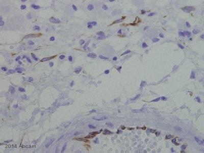 Immunohistochemistry (Formalin/PFA-fixed paraffin-embedded sections) - Anti-AKT2 (phospho S474) antibody (ab38513)