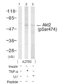 Western blot - Anti-AKT2 (phospho S474) antibody (ab38513)