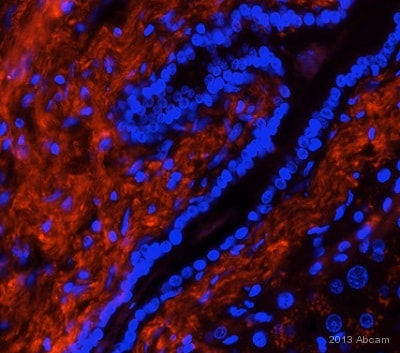 Immunohistochemistry (Formalin/PFA-fixed paraffin-embedded sections) - Anti-htrA1 antibody (ab38611)