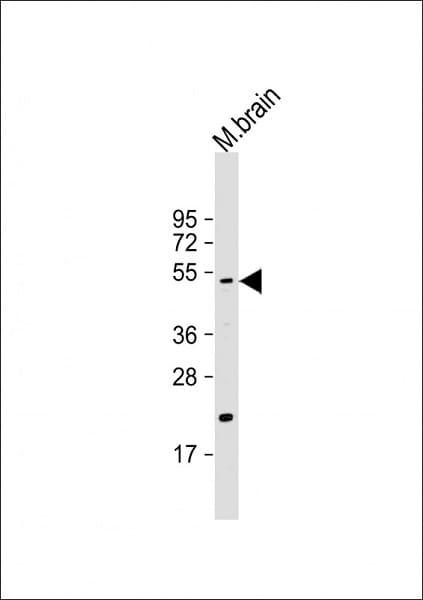 Western blot - Anti-htrA1 antibody (ab38611)