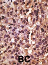 Immunohistochemistry (Formalin/PFA-fixed paraffin-embedded sections) - Anti-BNIP3 antibody (ab38621)