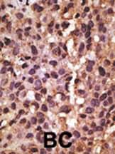 Immunohistochemistry (Formalin/PFA-fixed paraffin-embedded sections) - Anti-BNIP3 antibody (ab38621)