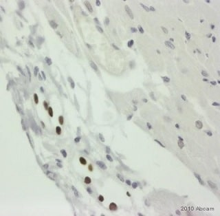 Immunohistochemistry (Formalin/PFA-fixed paraffin-embedded sections) - Anti-PROX1 antibody (ab38692)