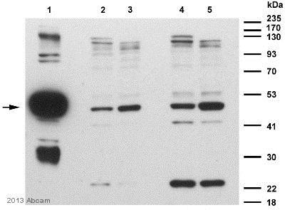 Western blot - Anti-RTR antibody (ab38816)