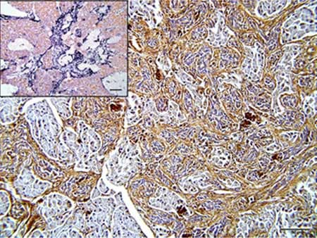 Immunohistochemistry (Formalin/PFA-fixed paraffin-embedded sections) - Anti-MMP9 antibody (ab38898)