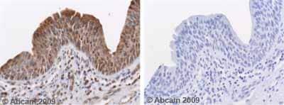 Immunohistochemistry (Formalin/PFA-fixed paraffin-embedded sections) - Anti-MMP10 antibody (ab38930)