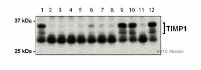 Western blot - Anti-TIMP1 antibody - Carboxyterminal end (ab38978)