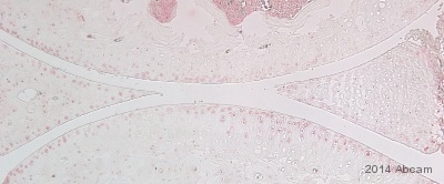 Immunohistochemistry (Formalin/PFA-fixed paraffin-embedded sections) - Anti-MMP13 antibody (ab39012)