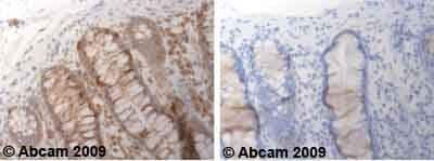 Immunohistochemistry (Formalin/PFA-fixed paraffin-embedded sections) - Anti-ADAM17 antibody (ab39162)