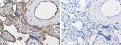 Immunohistochemistry (Formalin/PFA-fixed paraffin-embedded sections) - Anti-TIMP3 antibody - Carboxyterminal end (ab39185)