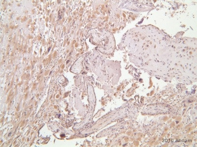 Immunohistochemistry (Formalin/PFA-fixed paraffin-embedded sections) - Anti-ADAMTS1 antibody (ab39194)