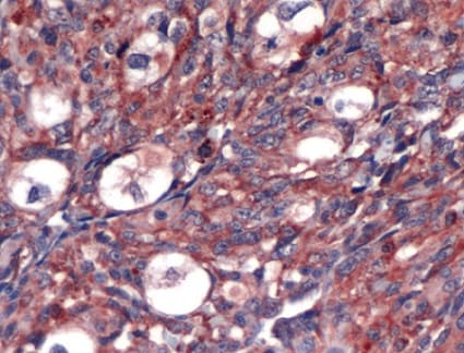 Immunohistochemistry (Formalin/PFA-fixed paraffin-embedded sections) - Anti-VEGFA antibody (ab39250)
