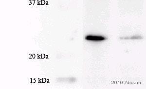 Western blot - Anti-MGMT antibody [MT3.1] (ab39253)
