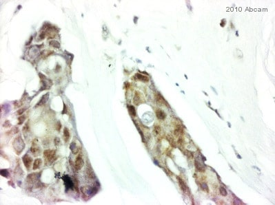 Immunohistochemistry (Formalin/PFA-fixed paraffin-embedded sections) - Anti-VEGF Receptor 2 antibody (ab39256)