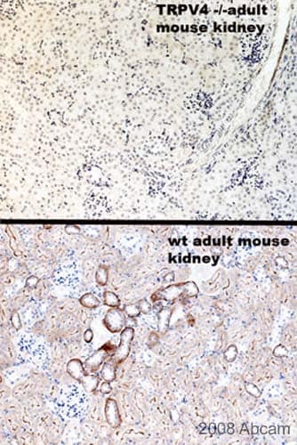 Immunohistochemistry (Formalin/PFA-fixed paraffin-embedded sections) - Anti-TRPV4 antibody (ab39260)