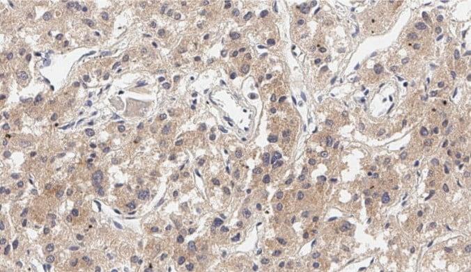 Immunohistochemistry (Formalin/PFA-fixed paraffin-embedded sections) - Anti-SOAT 1/ACAT1 antibody (ab39327)