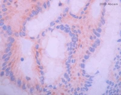 Immunohistochemistry (Formalin/PFA-fixed paraffin-embedded sections) - Anti-IGF1 Receptor (phospho Y1161) antibody (ab39398)