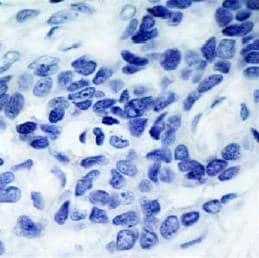 Immunohistochemistry (Formalin/PFA-fixed paraffin-embedded sections) - Anti-ASK1 (phospho S966) antibody (ab39402)