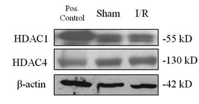 Western blot - Anti-HDAC4 (phospho S632) antibody (ab39408)