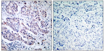 Immunohistochemistry (Formalin/PFA-fixed paraffin-embedded sections) - Anti-TYK2 antibody (ab39550)