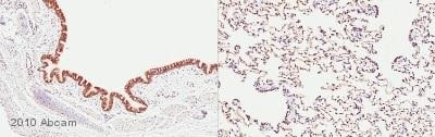 Immunohistochemistry (Formalin/PFA-fixed paraffin-embedded sections) - Anti-JAK2 antibody (ab39636)