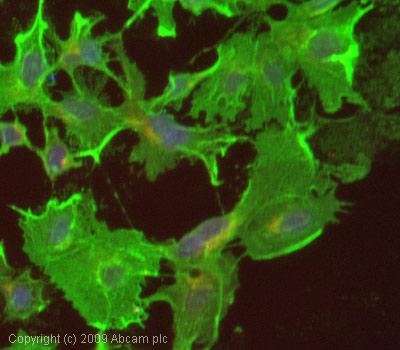 Immunocytochemistry/ Immunofluorescence - Anti-VEGF Receptor 2 antibody (ab39638)