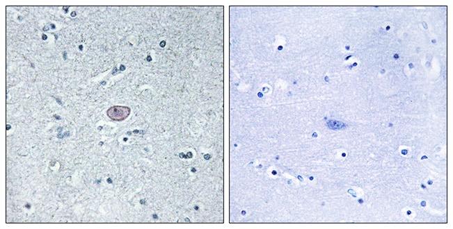 Immunohistochemistry (Formalin/PFA-fixed paraffin-embedded sections) - Anti-VEGF Receptor 2 antibody (ab39638)