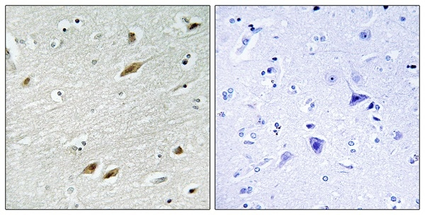 Immunohistochemistry (Formalin/PFA-fixed paraffin-embedded sections) - Anti-FOXO1A antibody (ab39670)
