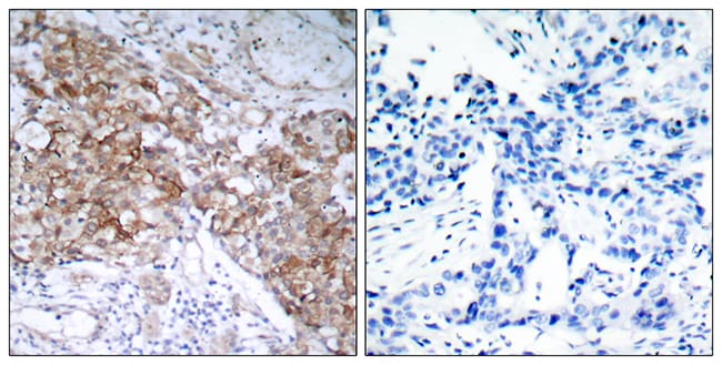 Immunohistochemistry (Formalin/PFA-fixed paraffin-embedded sections) - Anti-IGF1 Receptor antibody (ab39675)