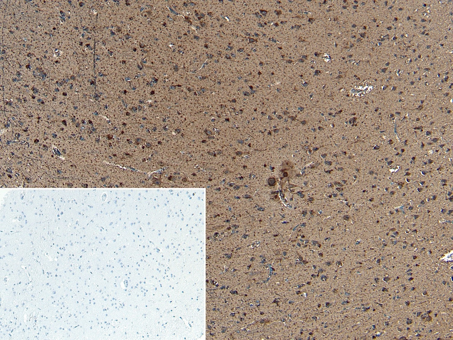 Immunohistochemistry (Formalin/PFA-fixed paraffin-embedded sections) - Anti-Nav1.5/SCN5A antibody (ab39992)
