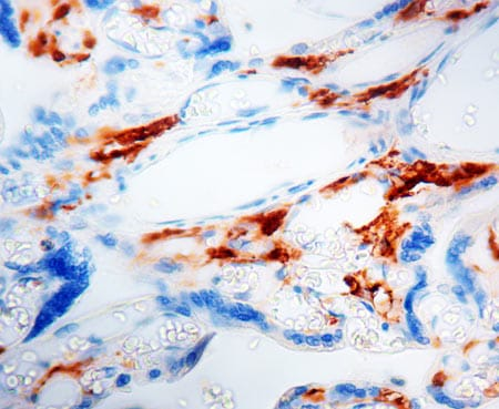 Immunohistochemistry (Formalin/PFA-fixed paraffin-embedded sections) - Anti-Factor XIIIa antibody (ab4057)