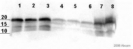 Western blot - Anti-S100 antibody [4C4.9] (ab4066)