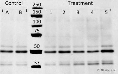 Anti-alpha Tubulin antibody - Loading Control (ab4074)   Abcam