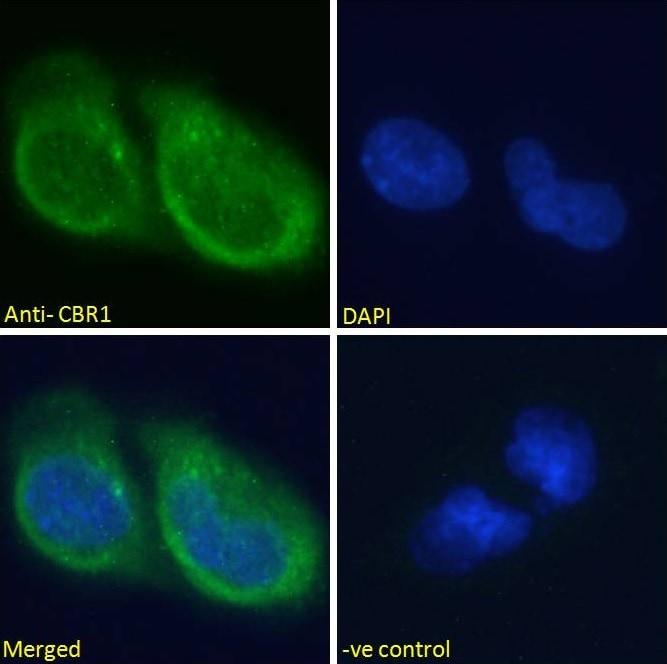 Immunocytochemistry/ Immunofluorescence - Anti-CBR1 antibody (ab4148)