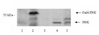 Western blot - Anti-PNK antibody (ab4191)