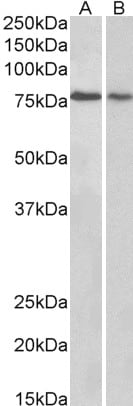 Western blot - Anti-RNF22 antibody (ab4215)