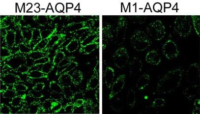 Immunocytochemistry/ Immunofluorescence - Anti-C1q antibody (FITC) (ab4223)