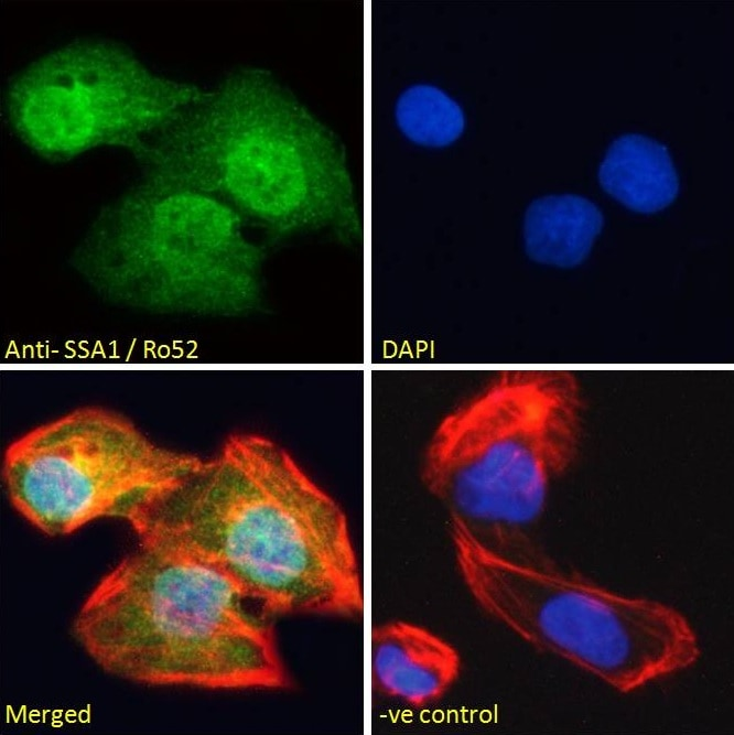 Immunocytochemistry/ Immunofluorescence - Anti-TRIM21/SS-A antibody (ab4369)