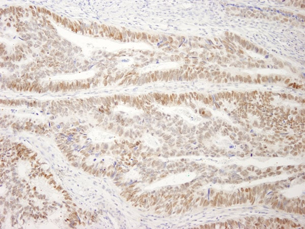 Immunohistochemistry (Formalin/PFA-fixed paraffin-embedded sections) - Anti-DRIL1 antibody (ab4445)