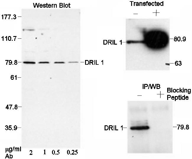 Western blot - Anti-DRIL1 antibody (ab4445)