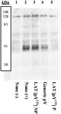 Western blot - Anti-LAT (phospho Y132) antibody (ab4476)