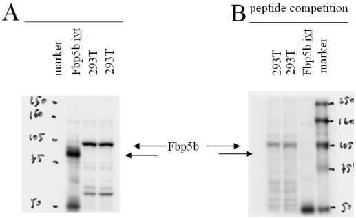 Western blot - Anti-Fbp5B antibody (ab4506)