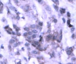 Immunohistochemistry (Formalin/PFA-fixed paraffin-embedded sections) - Anti-NSD3 antibody (ab4514)