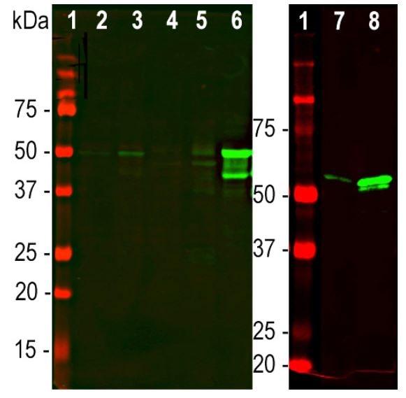 免疫印迹-抗GFAP抗体[2A5](ab4648)
