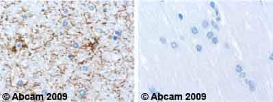 Immunohistochemistry (Formalin/PFA-fixed paraffin-embedded sections) - Anti-GFAP antibody [2A5] (ab4648)