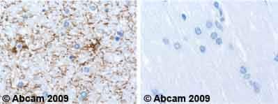 免疫组织化学(福尔马林/PFA固定石蜡包埋切片)-抗GFAP抗体[2A5](ab4648)