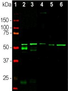 Western blot - Anti-Peripherin antibody [8G2] (ab4653)