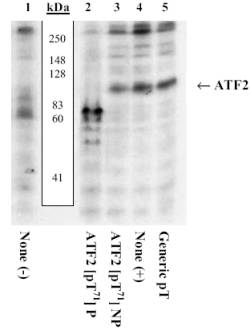 Western blot - Anti-ATF2 (phospho T71) antibody (ab4736)