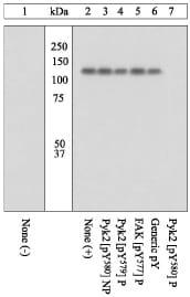 Western blot - Anti-PYK2 (phospho Y580) antibody (ab4806)