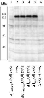 Western blot - Anti-PYK2 (phospho Y579 + Y580) antibody (ab4807)
